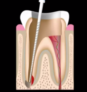 Root canal Frisco Tx