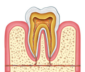 Frisco root canal