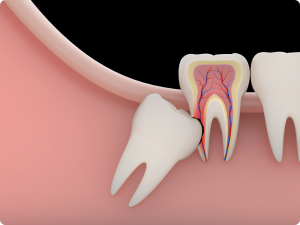 Tooth Extraction Frisco TX