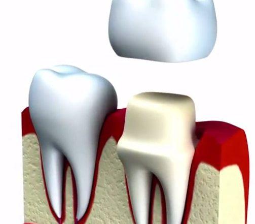 Dental Crown Frisco