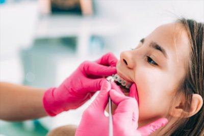Kids orthodontics The Colony