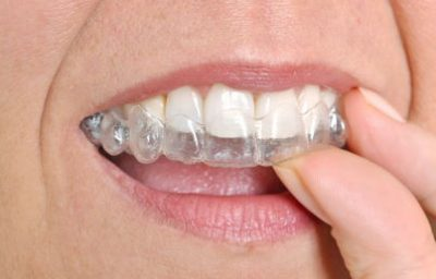 Clear Aligners for Teenagers