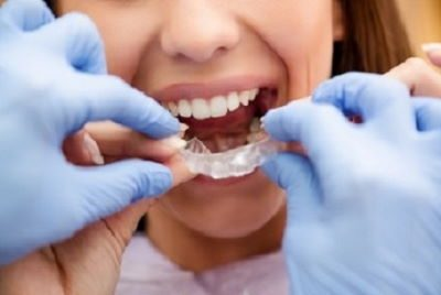 Invisalign for Adults in Frisco