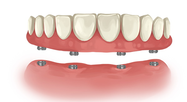 Price of dental implant supported dentures