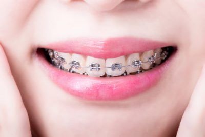 correct your bite at Highland Oak Dental in The Colony