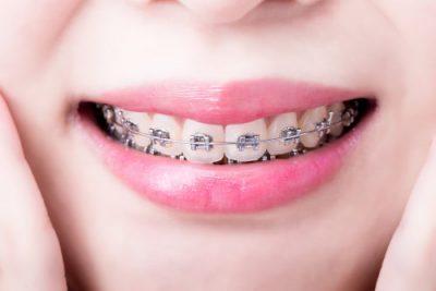 correct your bite at Highland Oak Dental in McKinney