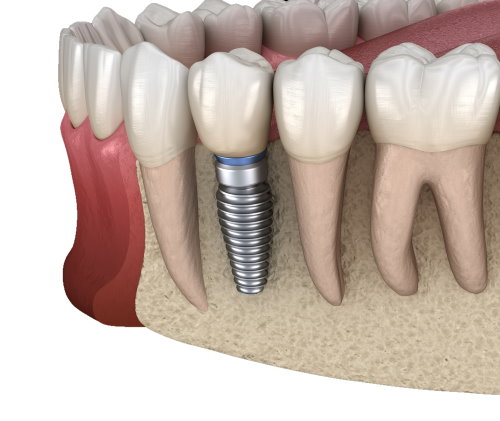 Highland Oak Dental Tooth replacement for Lewisville community