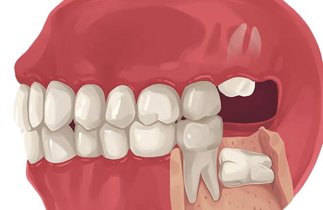 Wisdom teeth removal cost | How much are wisdom teeth ...