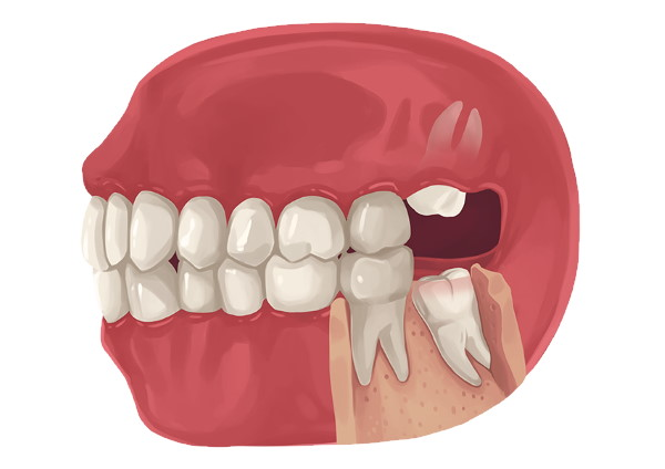 Wisdom Teeth Removal Emergency Recovery Cost Pain What Is Frisco Tx Texas Highland Oak Dental